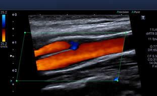 Ultrassonografia Vasos Sanguíneos