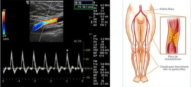 Doppler Colorido Arterial Periférico
